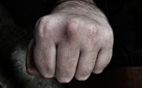 В Светлогорске под суд пойдет Дед Мороз, сломавший челюсть подростку