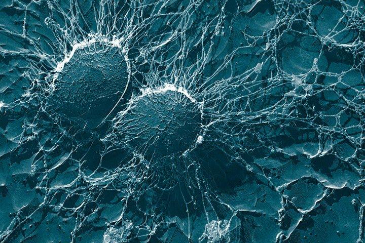 Российские разработчики создали сервис для анализа микробиома кишечника. Он свяжет образ жизни со здоровьем