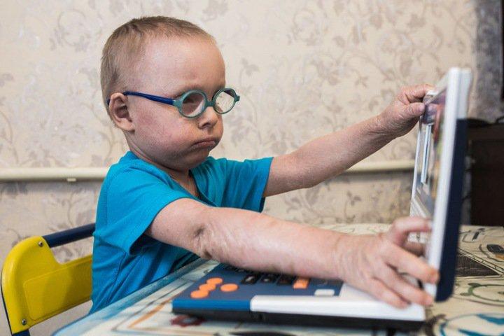 Трехлетнему мальчику с ихтиозом из Новосибирска нужны дорогие препараты