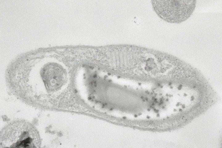 Томские ученые впервые выделили бактерию, способную выжить в космосе