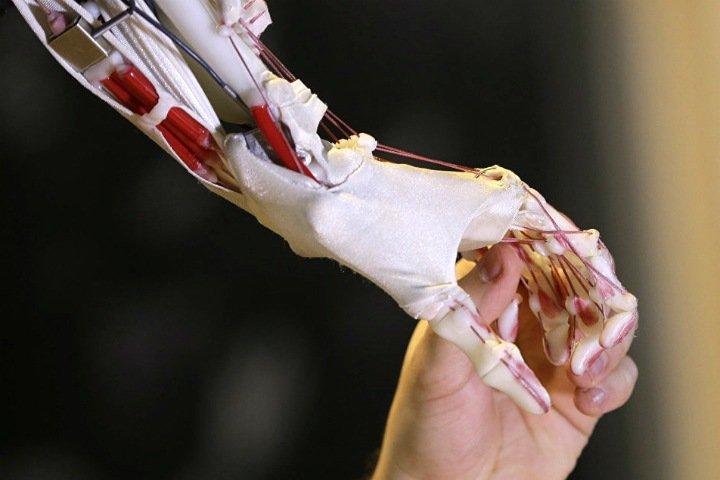 Пациенты в России получат искусственные кости из полиэтилена