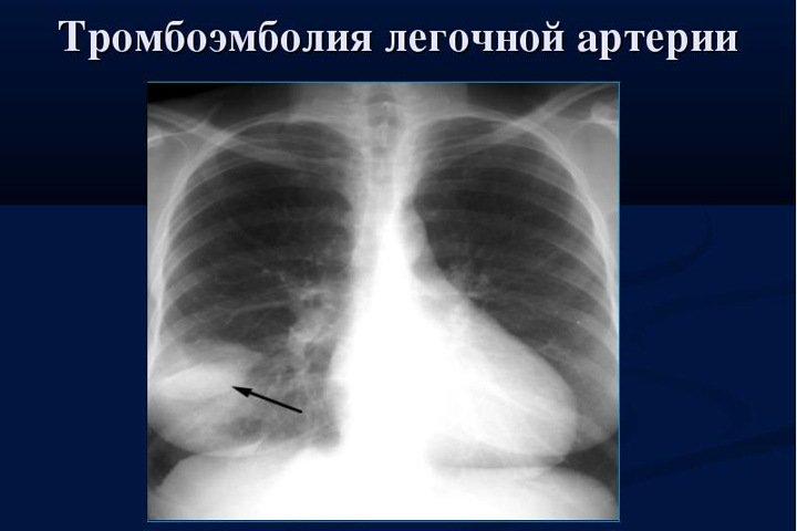 Красноярские хирурги впервые извлекли тромб из легких пациента