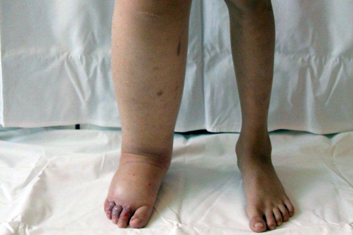 Новосибирские ученые нашли гены «слоновьих» ног у людей