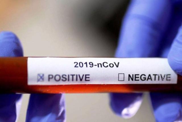 Отчего тесты на коронавирус в половине случаев врут