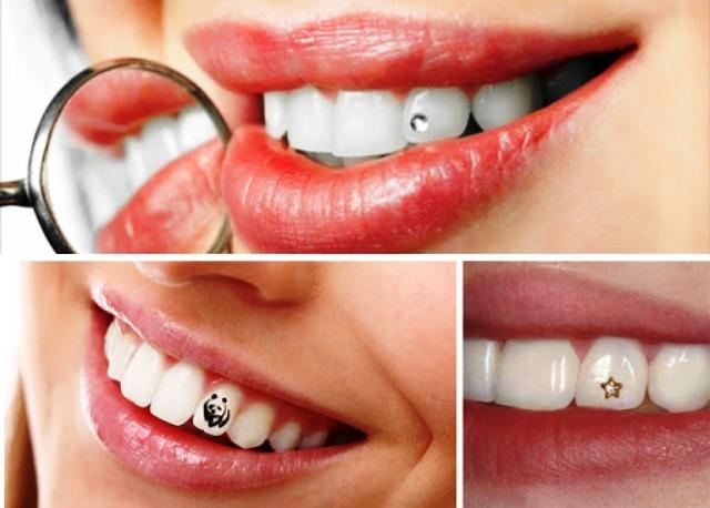 Эстетическая стоматология: здоровые зубы и красивая улыбка на все 32